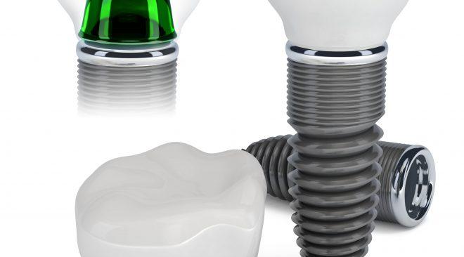 Perguntas frequentes sobre implante dentário - Tire suas dúvidas.