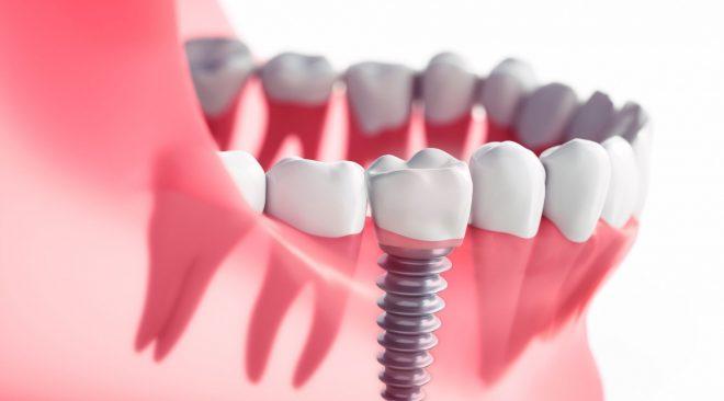As principais vantagens de fazer um implante dentário
